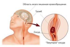 Нарушение кровообращения на участке головного мозга - инсульт