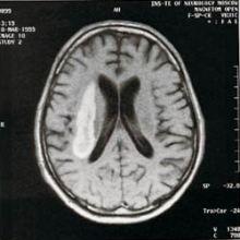 МРТ инсульта