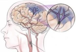 Схема развития инсульта
