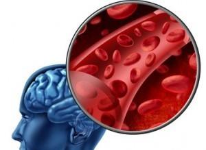 Нарушение кровообращения в головном мозгу