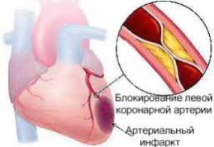 Нарушение кровоснабжения одной из артерий сердца из-за тромбоза