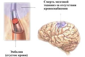 Очаг поражения клеток мозга разрастается
