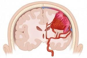Субарахноидальное кровоизлияние в результате инсульта