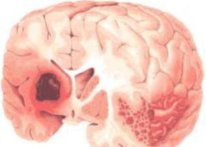Геморрагический мозговой удар