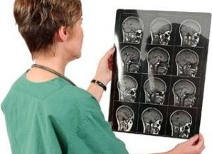Локализация очага мозгового удара