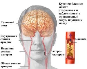 Поражение участка мозговых тканей