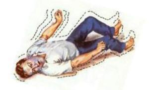 Тяжелое состояние после апоплексии