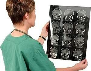 Клиническая картина после апоплексии