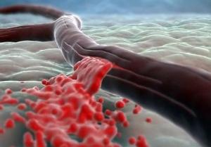 Разрыв кровеносного сосуда - основная причина развития геморрагического инсульта