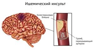Образование тромба в сосуде головного мозга -  прямое показание к проведению тромболизиса