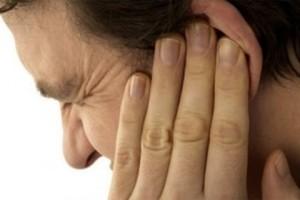 Нейропатия вестибулярного нерва