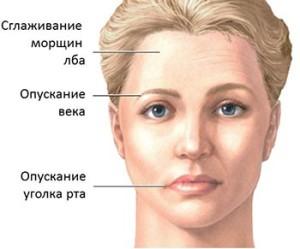 Последствия неврита