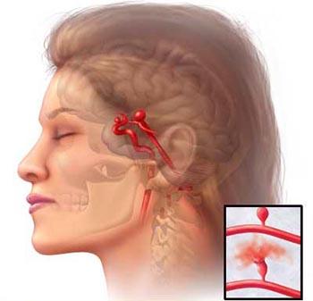 Аневризмы мозговых сосудов