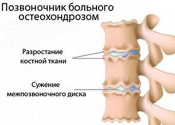 Шейная форма остеохондроза