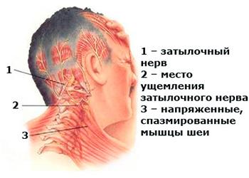 Невралгия нерва