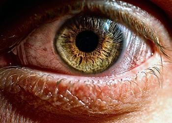 почему цефалгия той или иной локализации может отягощаться чувствами рези, мерцания или давления в глазах, болями в затылке при повороте головы? Первично следует сказать, что наш