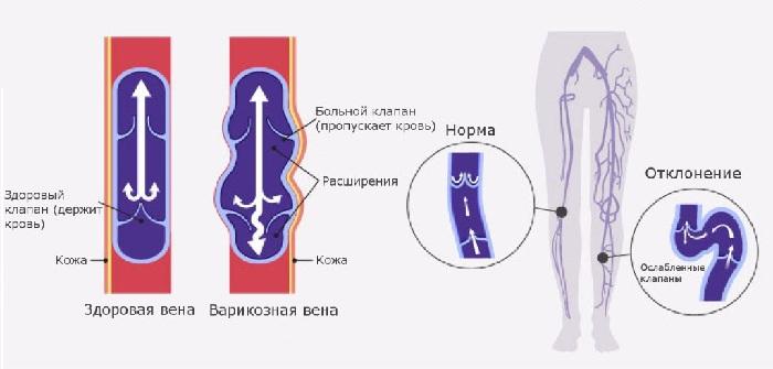 Варикозная болезнь