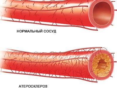 Артериоз