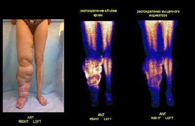 Радиоизотопная флебография