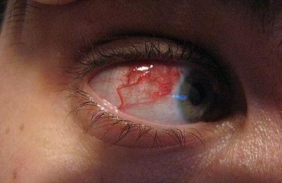 Больной глаз