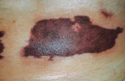 Некрозы кожи