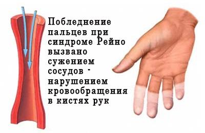 Синдром Рейно