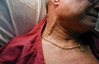 Пульсация яремных вен
