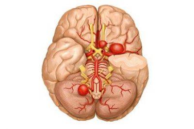 Сосуды в головном мозге
