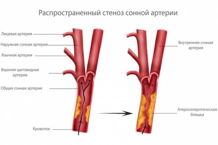 Атеросклероз сонной артерии