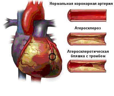 Заболевание сосудов сердца