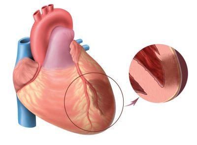 Заболевания сосудов сердца
