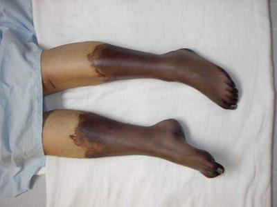 Гангрена ног