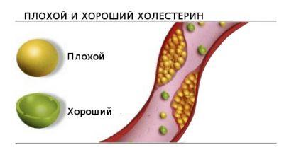 Виды холестерина
