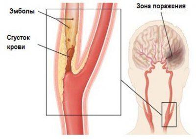 Поврежденная сонная артерия
