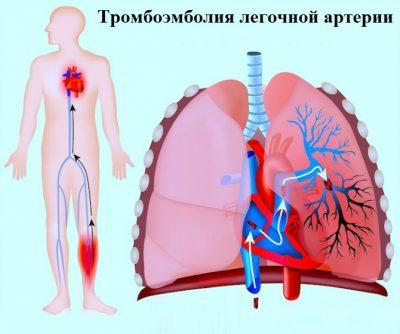 Заболевание сосудов