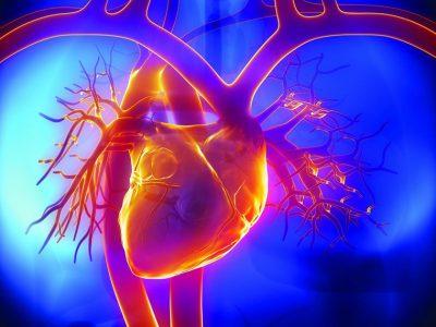 Заболевание коронарных артерий