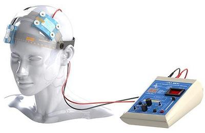 Транскраниальная электростимуляция