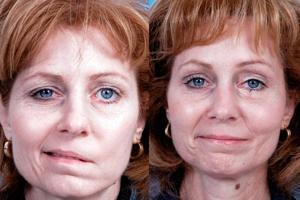Фото до инсульта и после