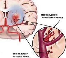 Механизм развития геморрагического инсульта