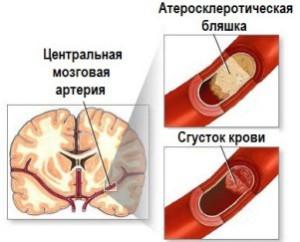Источник кровоизлияния в мозг