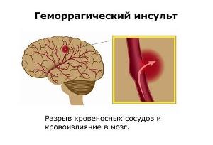 Как может развиваться инсульт