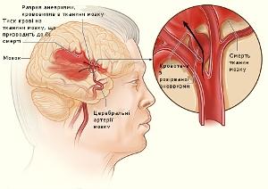 Локализация очага поражения ткани мозга