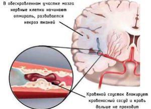 Процесс протекания инсульта