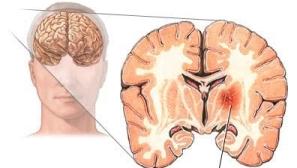 Разрыв мозговых сосудов
