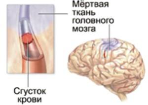 Повторный инсульт: прогнозы и его последствия - второй и третий ...