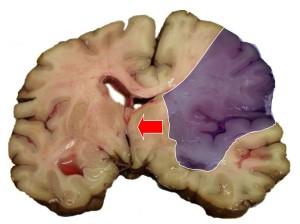 Зона отмирания участка головного мозга