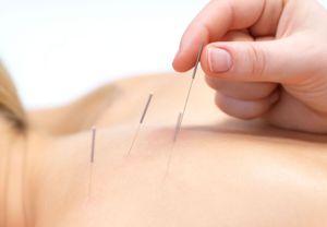 Иглотерапия восстанавливает организм после заболеваний