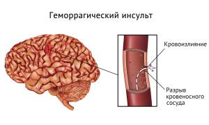 Кровоизлияние в мозг в результате удара