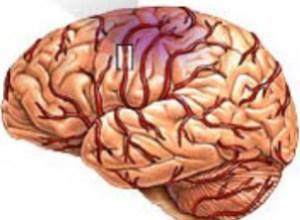Мозговой удар