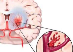 Последствия мозгового удара